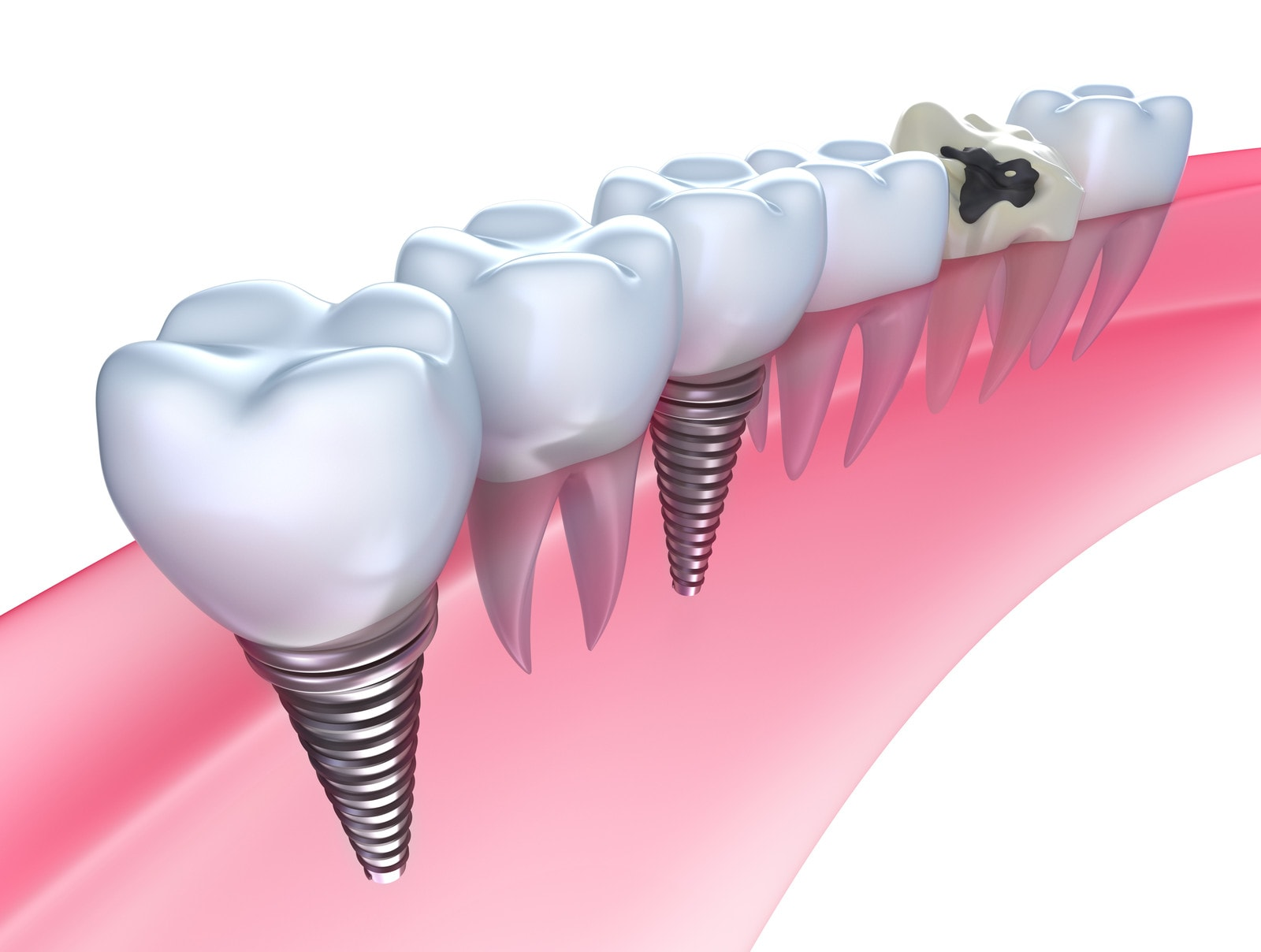 Dental Implants2