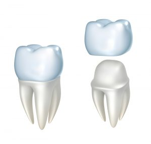 dental crowns FAQs